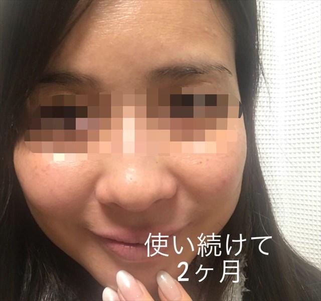 -2017-12-06-22-43-38 - image